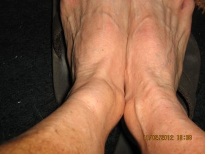 swolen-ankle-assualt-2