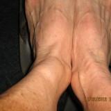 swolen ankle assualt 2